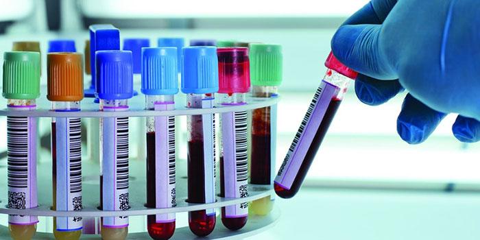 Современные методы анализа могут показать следы употребления героина и через 6 месяцев