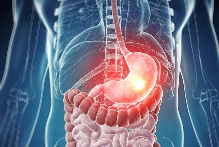 Омепразол применяют заболеваниях ЖКТ связанных с повышенной кислотностью