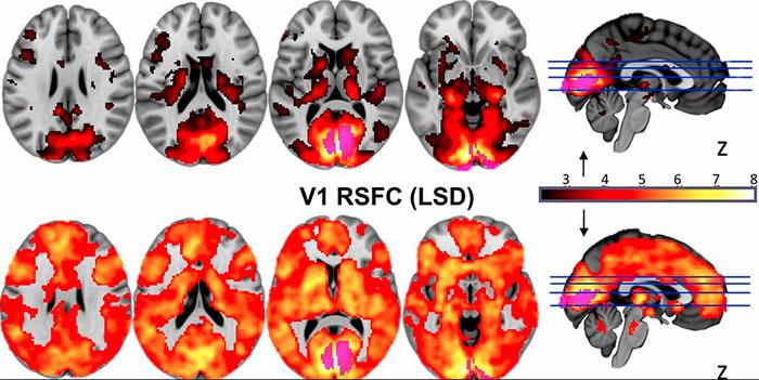 Воздействие LSD на работу головного мозга