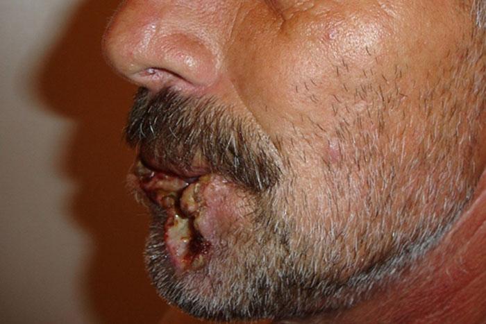 Злоупотребление насваем приводит к онкологическим заболеванием полости рта