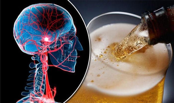 Употребление алкоголя после инсульта может привести к тяжелым последствиям