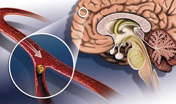 При инсульте нарушается кровообращение головного мозга в последствии закупорки или разрыва сосудов