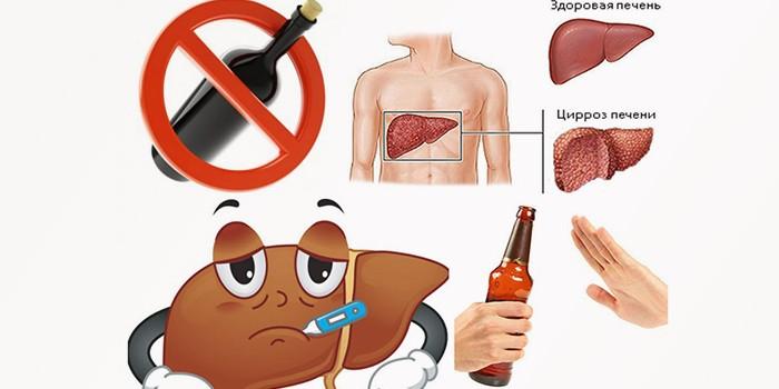 Печень участвует в переработке этилового спирта, что влечет за собой развитие патологий