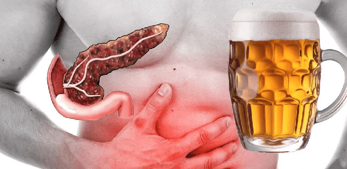 Алкоголизм может стать причиной развития панкреатита острого и хронического характера