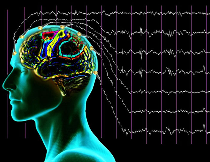 Интракраниальная транслокация подразумевает нейрофизиологическое воздействие на отдельные участки мозга