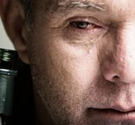 Почему опухает лицо после алкоголя: причины образования и как убрать припухлости