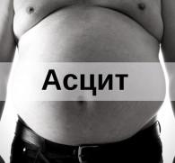 Асцит брюшной полости при циррозе печени: симптомы и лечение опасного заболевания