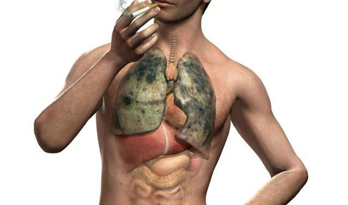 Состав табачного дыма раздражает бронхи и провоцирует заболевание