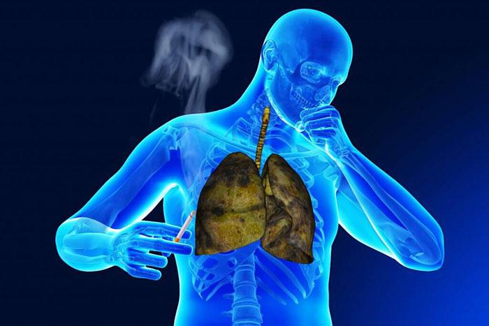 Курение в разы увеличивает вероятность заболевания туберкулёзом