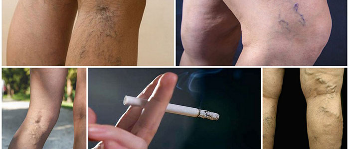 Курения усугубляет состояние больного и процесс лечения варикоза