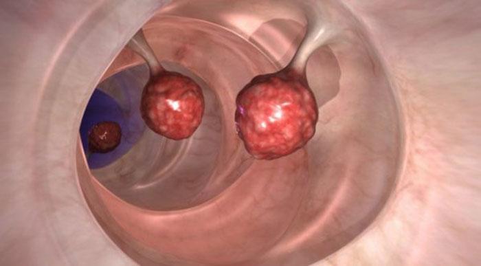 Регулярное употребление спиртного может стать причиной развития рака кишечника