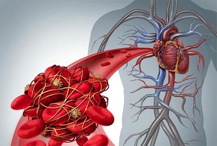 Варфарин применяют для предотвращения тромбообразования и других заболеваниях ССС