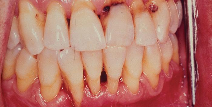 Употребление снюса способно вызвать заболевания дёсен и рак слизистой рта