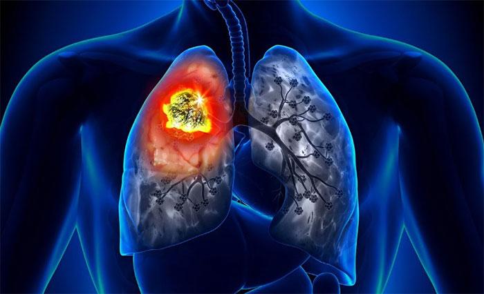 Электронные сигареты и рак
