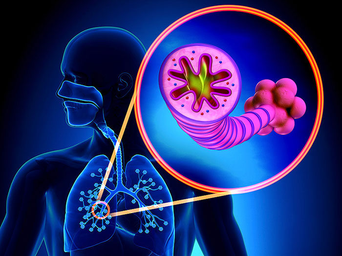 Хроническая обструктивная болезнь лёгких выражается в стойкой непроходимости бронхов