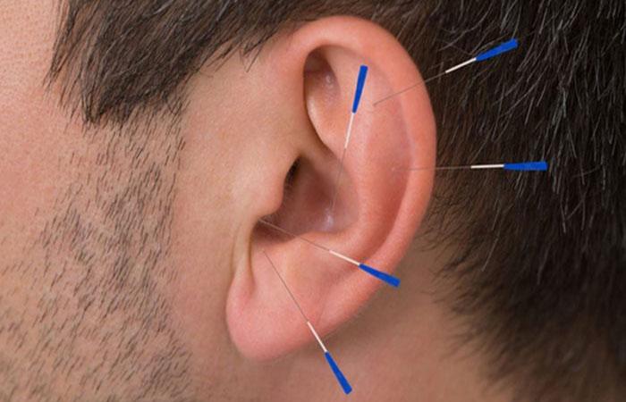 При лечении никотиновой зависимости введение игл происходит в области ушных раковин в специальные точки