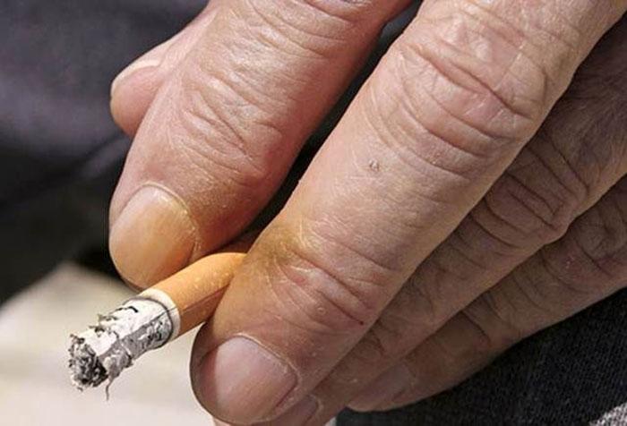 У заядлого курильщика образуются жёлтые пятна на пальцах, которыми он держит сигарету