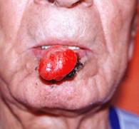 Рак губы от курения: первые симптомы и причины развития заболевания