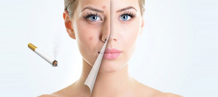 Курение негативно влияет на внешность, вызывая заболевания кожи и её старение