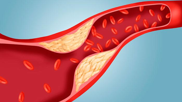 Холестерин — органическое соединение, природный полициклический липофильный спирт