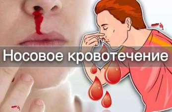 Кровь из носа после алкоголя: причины носового кровотечения и методы борьбы