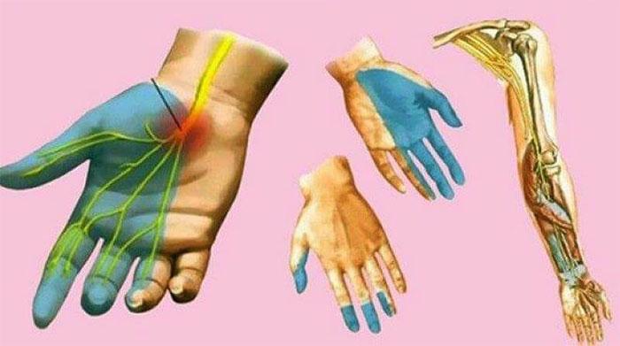 Онемение конечностей, чаще всего, происходит из-за сдавливания, нарушающего кровоток