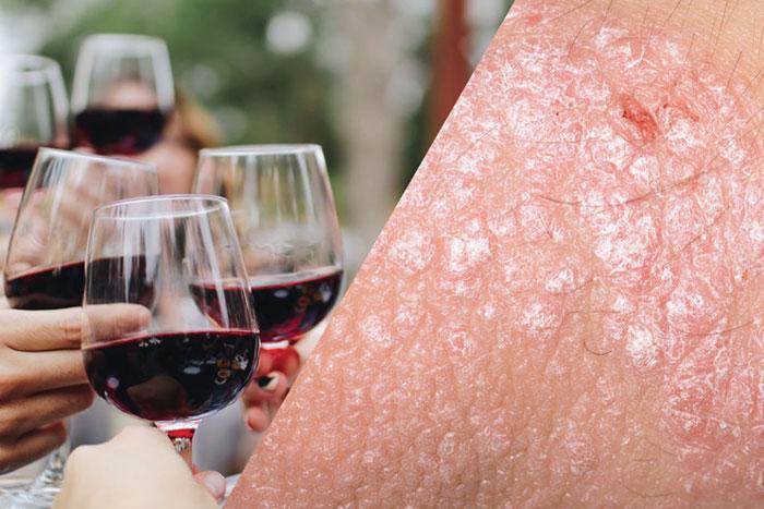 При псориазе рекомендуется исключить употребление красного вина