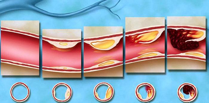 При высоком уровне холестерина, алкоголь будет способствовать формированию бляшек в сосудах