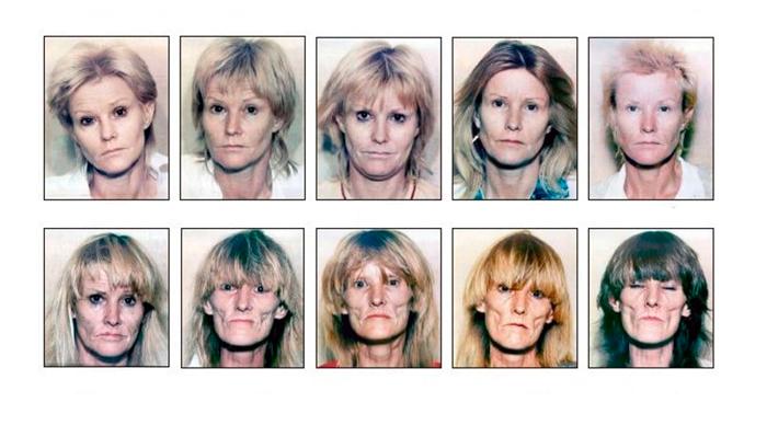 Изменение внешности человека употребляющего Винт на протяжении многих лет