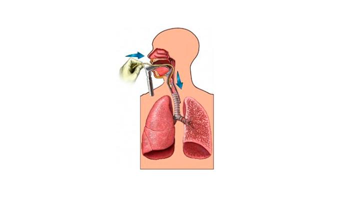 Искусственная вентиляция легких при нейролептическом синдроме