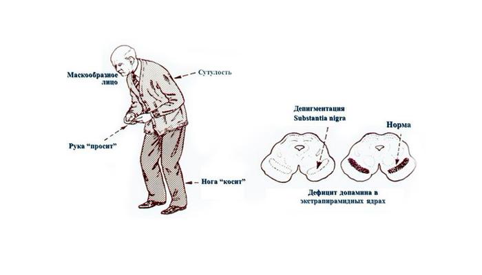 Нейролептический паркинсонизм