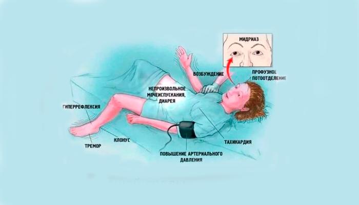 Симптомы злокачественного нейролептического синдрома