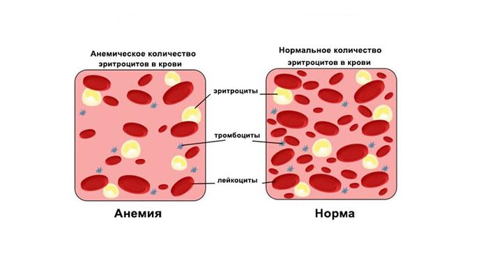 Развитие нейролептического синдрома из-за железодефицитной анемии