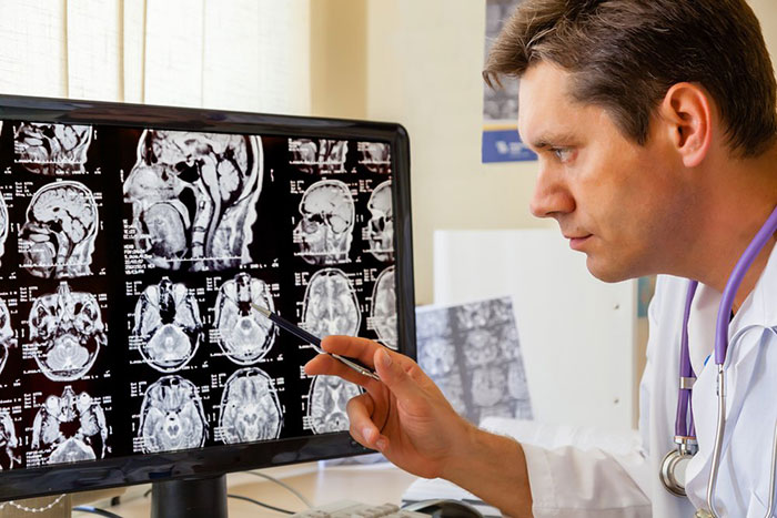 Снижение симптоматики рассеянного склероза на 0,5-0,6% при приёме спиртного в умеренном количестве