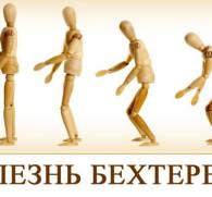 Алкоголь и болезнь Бехтерева: можно ли пить спиртное при заболевании суставов?