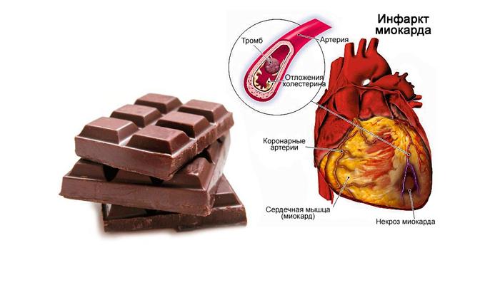 Возможный инфаркт в следствии чрезмерного приема шоколада