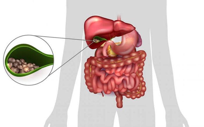 Желчный пузырь является резервуаром для накопления желчи расположен на висцеральной поверхности печени