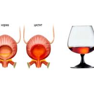 Цистит и алкоголь: может ли употребление спиртного спровоцировать заболевание?