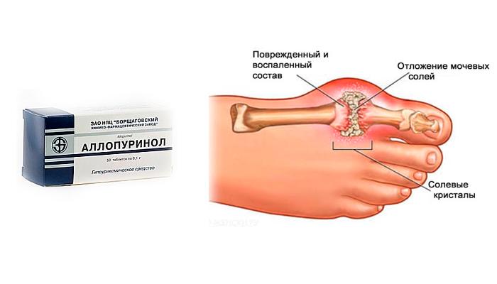Аллопуринол и алкоголь - ВашиНоги