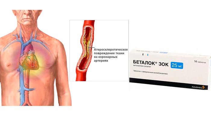 Применение препарата Беталок Зок при стенокардии