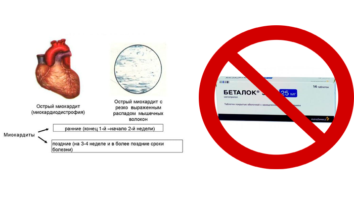 Запрет на прием лекарства Беталок Зок при остром миокардите