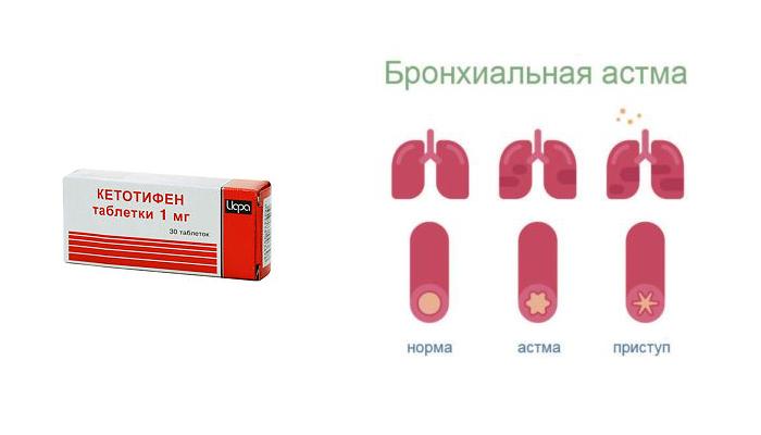 Применение Кетотифена при бронхиальной астме
