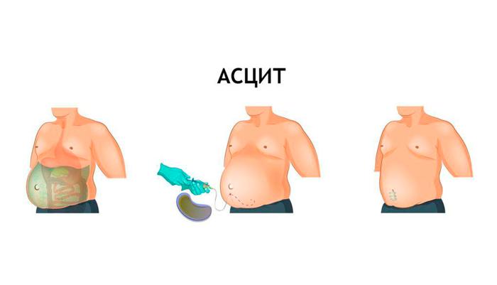 Операция лапароцентез для лечения асцита 3-й стадии