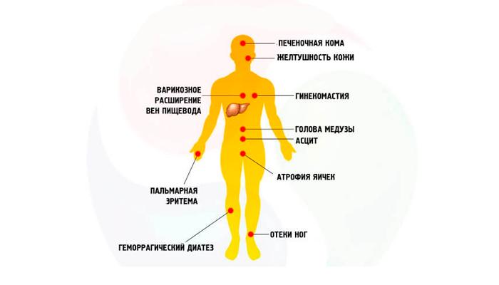 Осложнения после заболевания цирроза печени