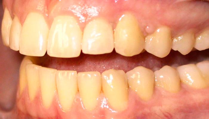 Пожелтение зубов в следствии злоупотребления медицинским никотином