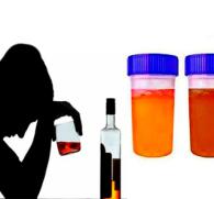 Моча темного цвета после алкоголя: причины изменений в организме
