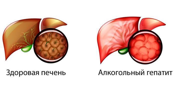 Алкогольный гепатит, как одна из причин темного цвета мочи