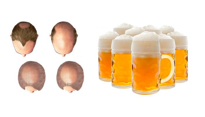 Облысение в следствии злоупотребления пивом