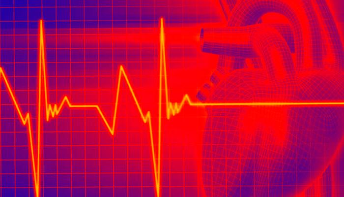 Учащенное сердцебиение на первой стадии алкогольной ломке