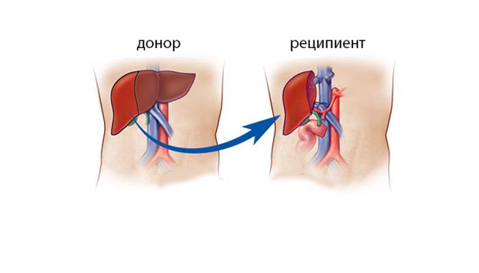Операция по трансплантации печени для устранения билиарного цирроза